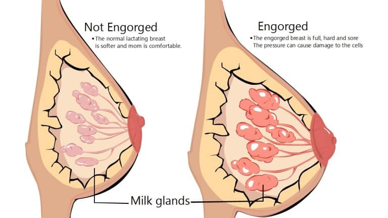 An illustration of a normal breast and an engorged breast with a clogged milk duct.